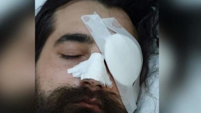 Συγκλονίζει ο φίλαθλος που έχασε το μάτι του: «Εγκληματική επίθεση από άνδρα των ΜΑΤ» (vid) | panathinaikos24.gr