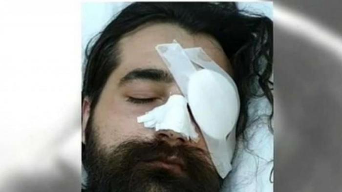 «Να βρεθούν οι αστυνομικοί που με τραυμάτισαν» – Ο οπαδός που τυφλώθηκε στο ΟΑΚΑ προαναγγέλλει μηνύσεις και αγωγές | panathinaikos24.gr